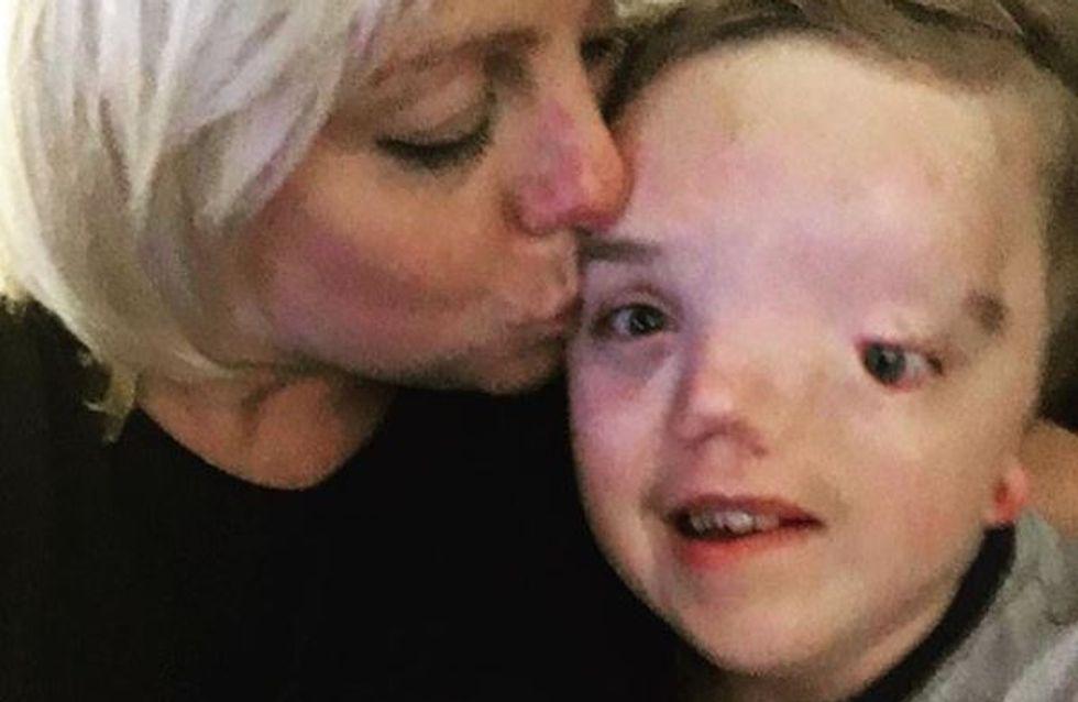 Instagram censura una foto de un niño enfermo y su madre responde así