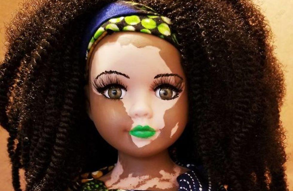 Una artista crea estas muñecas con vitíligo para ayudar a los niños con esta enfermedad