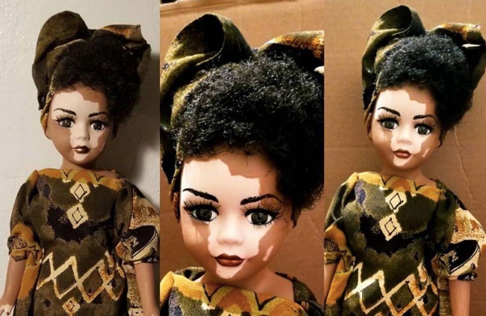 Elle crée des poupées atteintes de vitiligo pour changer le regard des enfants sur la maladie (Photos)