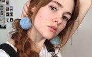 Mira el poderoso mensaje de autoestima de esta joven con acné severo