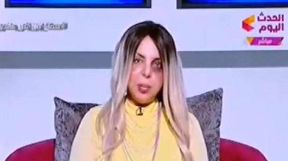 Elle présente courageusement son émission le visage tuméfié (vidéo)