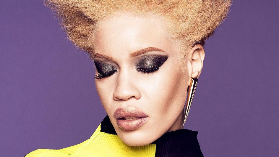 Diandra Forrest, mannequin albinos, devient égérie de cette grande marque beauté