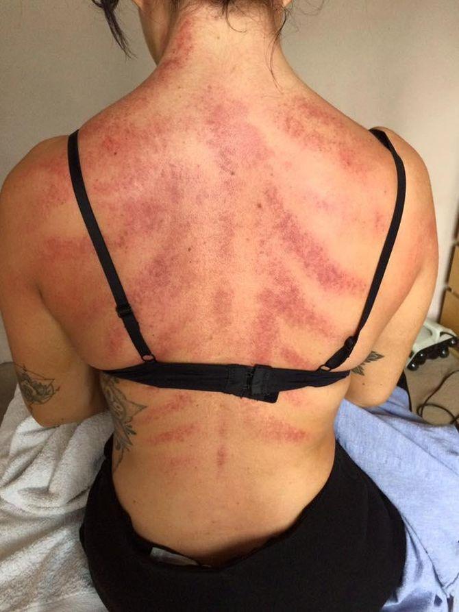 Le massage Gua Sha d'une coiffeuse