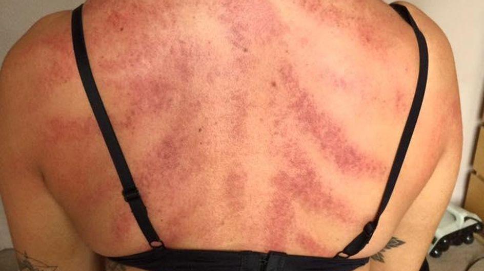 Il dévoile des photos CHOCS sur les difficultés du métier de coiffeur (photos)