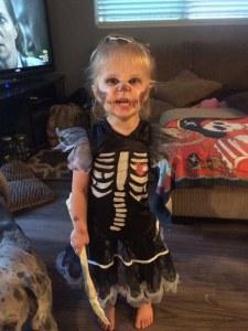 Amputée d'un bras, cette petite fille de 3 ans embrasse son handicap grâce à la fête d'Halloween