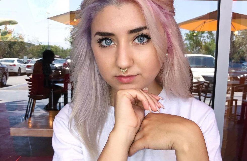Elle perd tous ses cheveux à cause d'un défrisant, et c'est CHOQUANT ! (Photos)