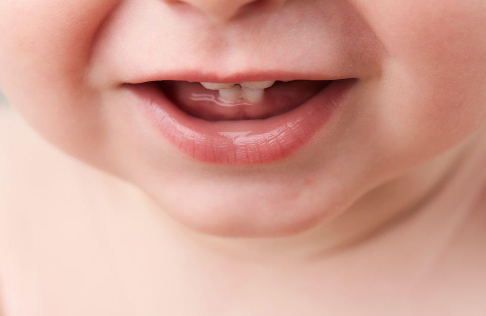 I primi dentini del bambino: sintomi, disturbi e tutto quello che c'è da sapere