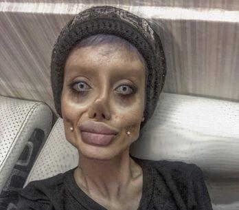 Esta chica se somete a 50 operaciones para parecerse a Angelina Jolie