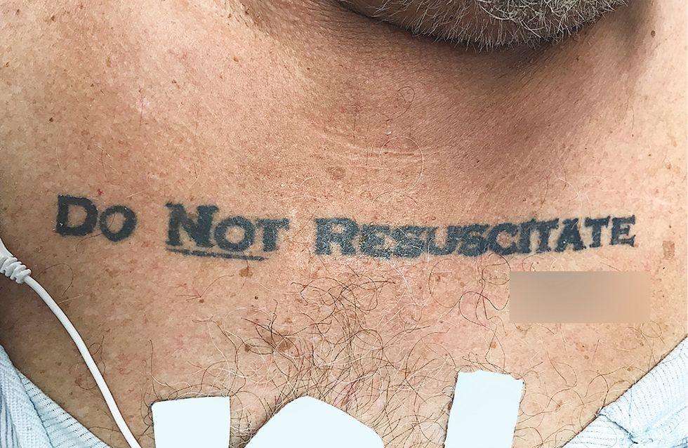 """Il avait un tatouage """"ne pas réanimer"""", les médecins le laissent mourir"""