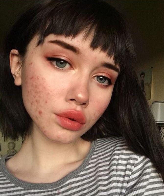 Cette Instagrameuse assume son acné et nous décomplexe !