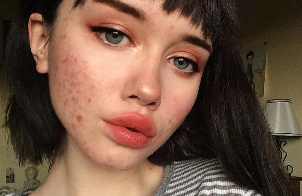 Esta instagramer muestra su acné para luchar contra los estereotipos de belleza