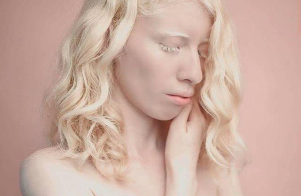 Je suis fière de ce que je suis, cette jeune albinos change les standards de beauté