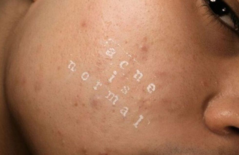Il refuse de retoucher ses photos pour prouver que l'acné est normal
