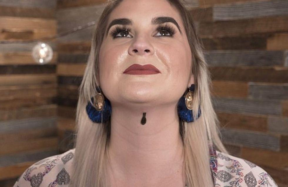 Elle laisse une sangsue sur son visage pour une peau plus douce (Photos)