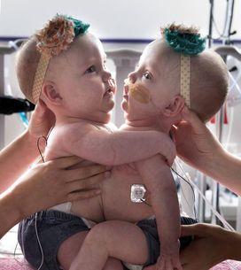 Les photos de ces jumelles partageant le même coeur sont incroyables