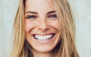 Estética de encías: los mejores tratamientos para presumir de sonrisa