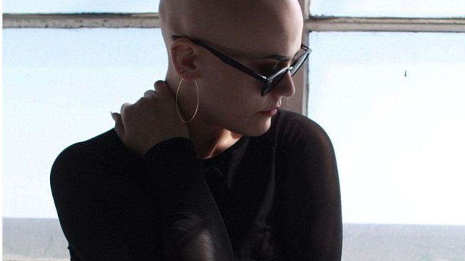 Victime de moqueries, elle laisse tomber sa perruque et assume son crâne chauve
