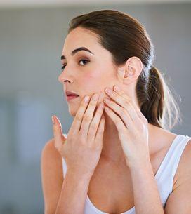 Rimedi naturali contro l'acne: ecco i più efficaci