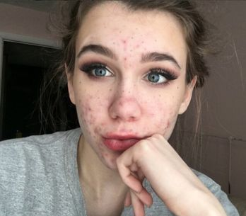 Cette femme a failli perdre la vue à cause d'un traitement contre l'acné
