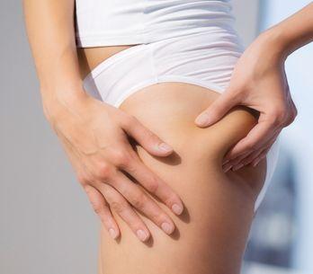 Cellulite: le cause più frequenti e i rimedi per curarla