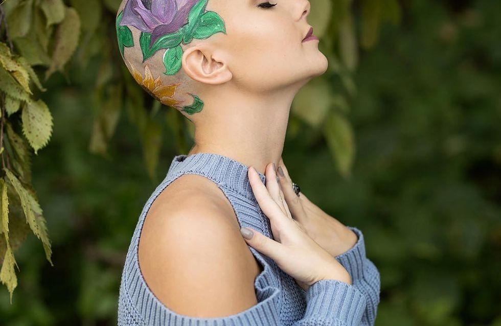 Estas preciosas flores le dieron fuerza tras un problema de alopecia