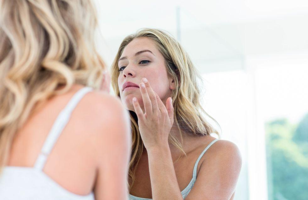 Schön durch die Wechseljahre: Wie verändert sich die Haut?