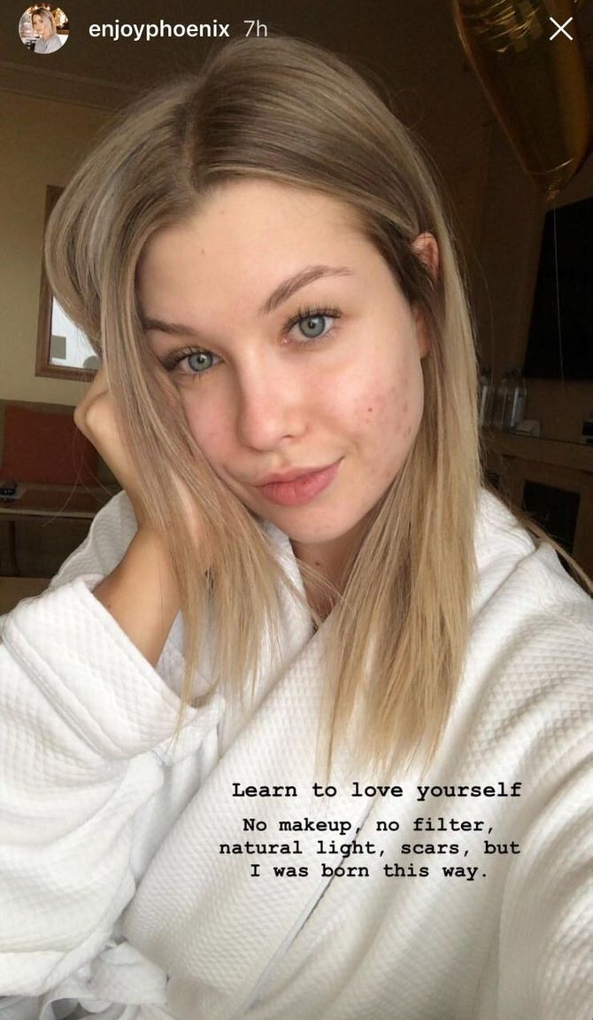 EnjoyPhoenix s'affiche sans maquillage sur Instagram pour la bonne cause (Photo)
