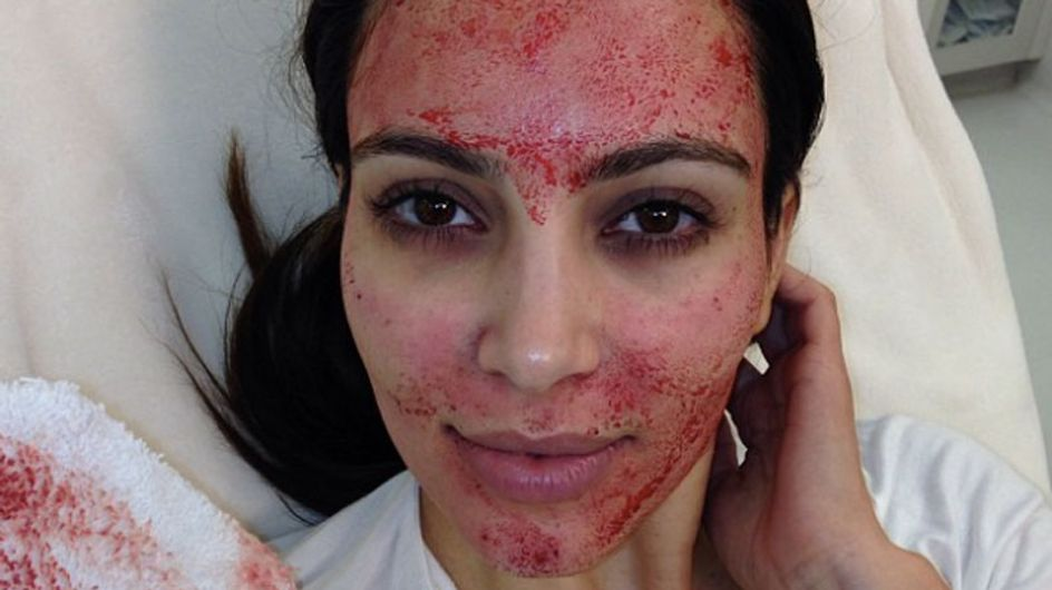 PRP injections: The Kim Kardashian blood facial
