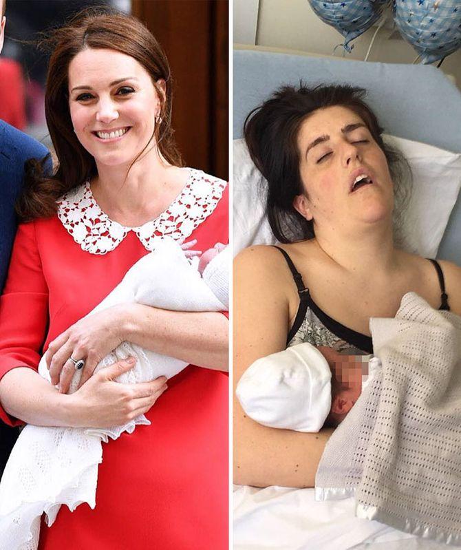 Comparación post-parto