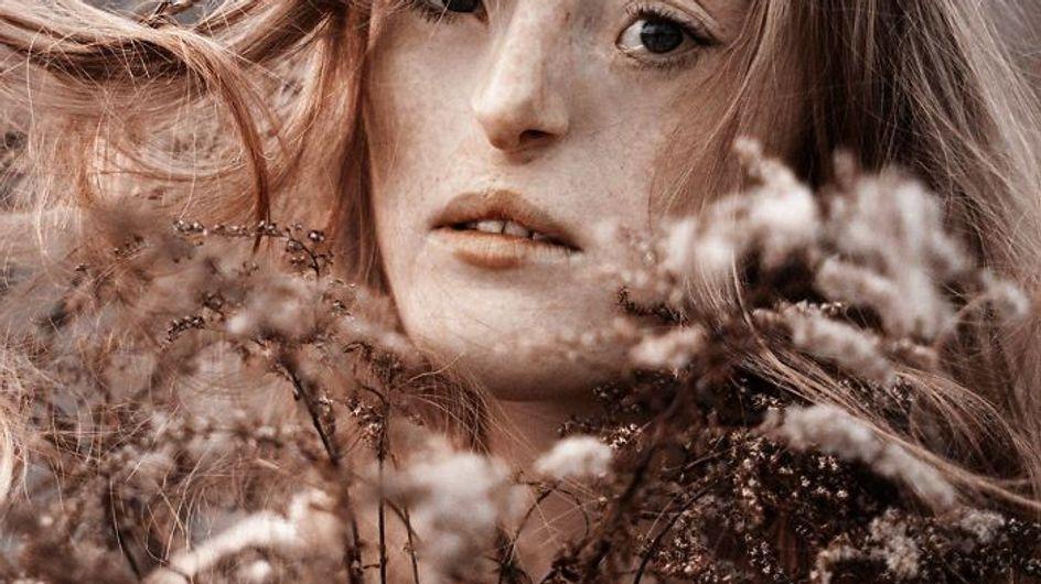 Ilka Brühl, la modelo con un raro defecto facial que rompe el ideal de belleza