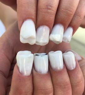 Molar Nails, la tendance nail art complètement WTF qui va vous faire grincer des