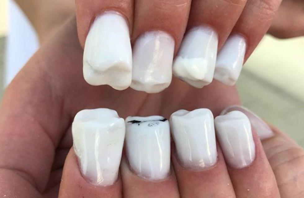Molar Nails, la tendance nail art complètement WTF qui va vous faire grincer des dents