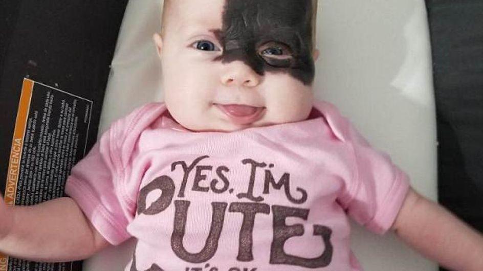 Avec sa tache de naissance noire sur le visage, ce bébé est comparé à un super-héros