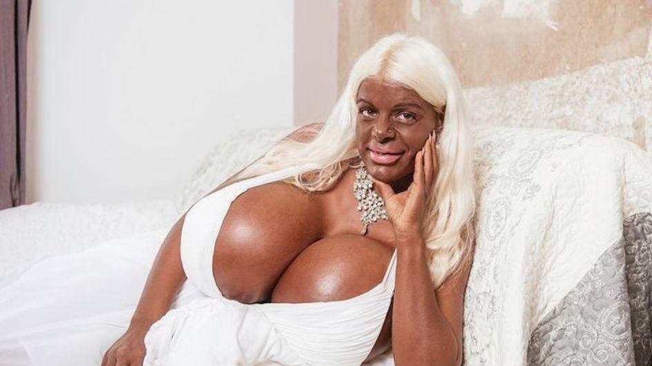 Cet ancien sosie de Barbie dépense 60 000 euros pour devenir une femme noire
