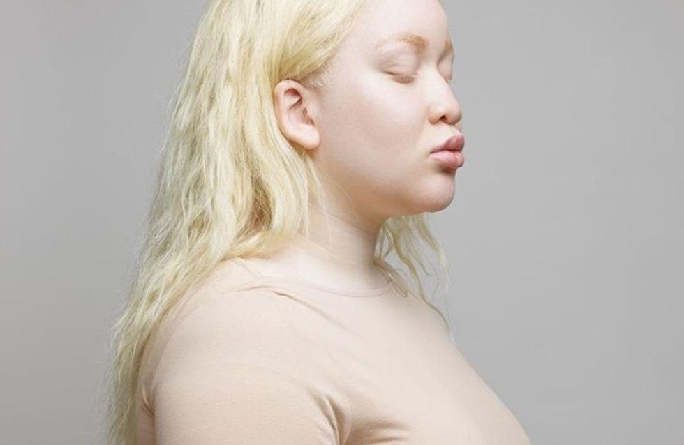 Moquée pendant son enfance, cette femme albinos prend sa revanche en devenant mannequin