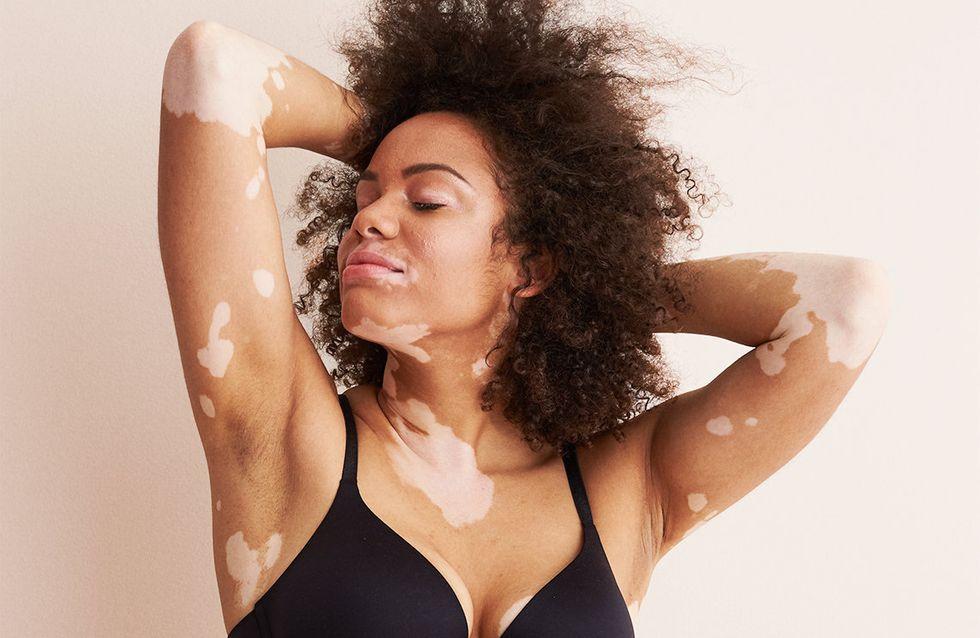 Trisomie, vitiligo... Cette marque de lingerie représente enfin toutes les femmes