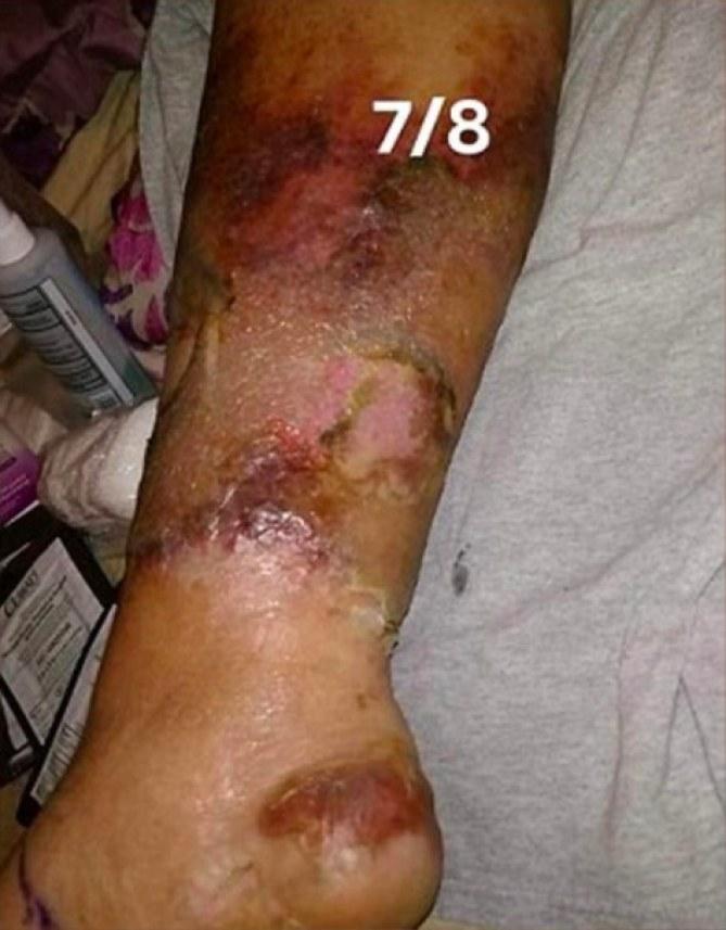 A cause d'une pédicure, cette femme aurait pu perdre sa jambe (photos)