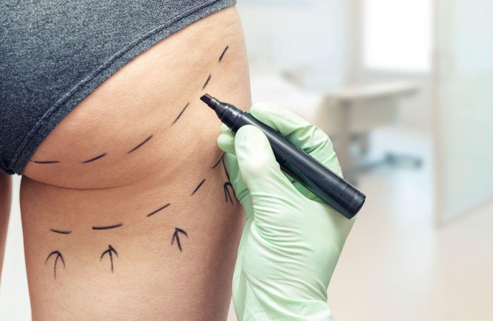 Lifting des fesses brésilien, pourquoi de nombreuses femmes décèdent suite à cette chirurgie