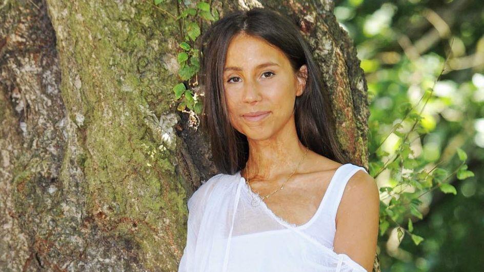Survivante d'une attaque à l'acide, elle crée un mouvement pour contrer les diktats de la beauté