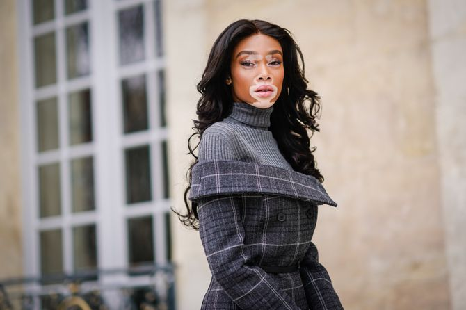 Winnie Harlow va enfin fouler le podium de Victoria's Secret