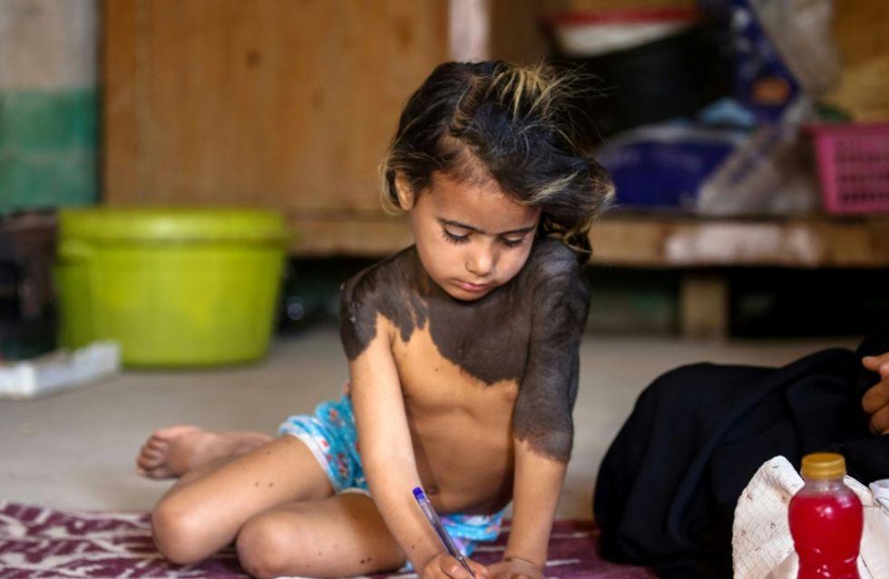 Cette petite fille est rejetée de tous à cause de cette maladie rare