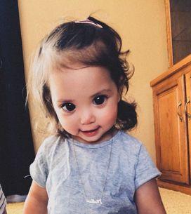 Ses grands yeux sont dus à une maladie génétique, sa maman lance un message touc