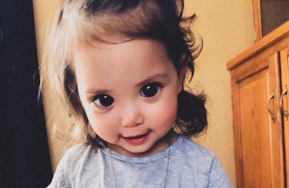 Ses grands yeux sont dus à une maladie génétique, sa maman lance un message touchant