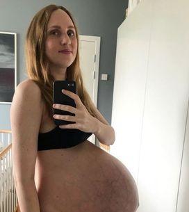 Elle publie une photo de son corps 4 jours après avoir accouché de triplés... et