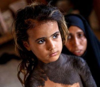 Haoura, 4 ans, moquée à cause de sa maladie, doit vivre recluse