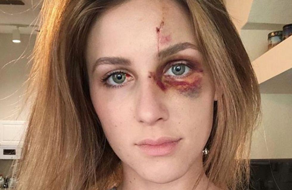 Révoltant ! Battue par son conjoint, cette star d'Instagram va être poursuivie en justice (photos)