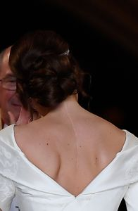La cicatrice de la princesse Eugenie, due à une opération subie lorsqu'elle était enfant