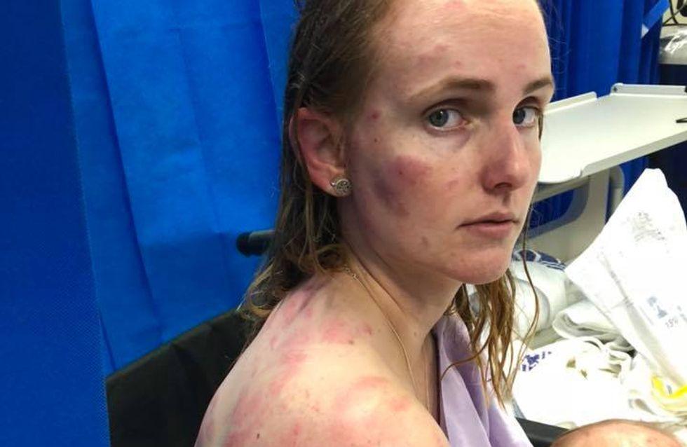 Elle se transforme en bouclier humain pour sauver sa fille et en ressort totalement meurtrie (Photos)