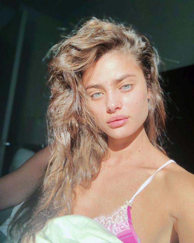 Acné apparente, Taylor Hill pose sans maquillage sur Instagram (Photos)