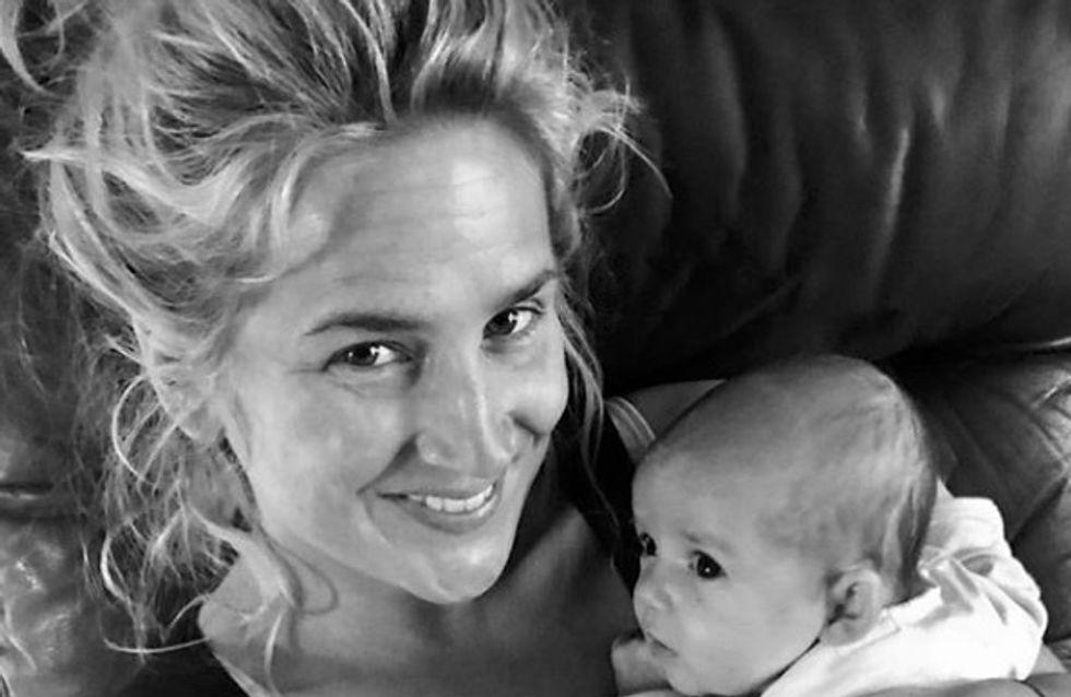 Cette maman encourage toutes les mères à ne pas avoir honte de leur cicatrice de césarienne (Photos)